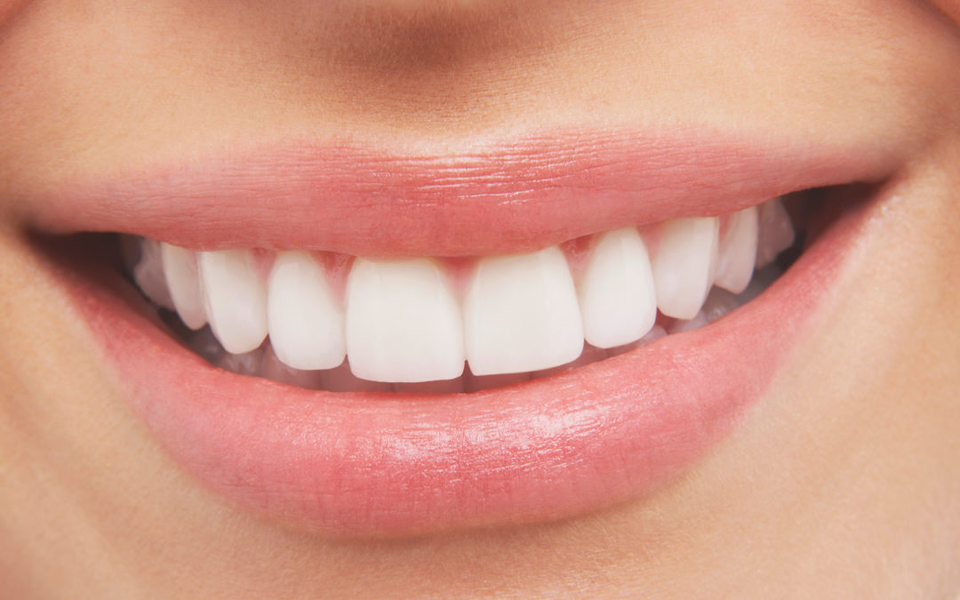Do Dental Implants really look like real teeth?